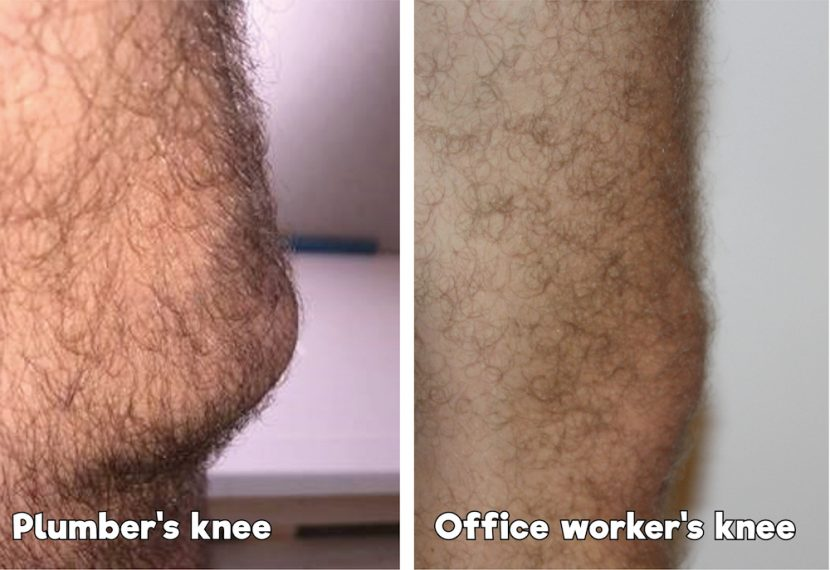 Research shows 75% of plumbers will experience knee problems